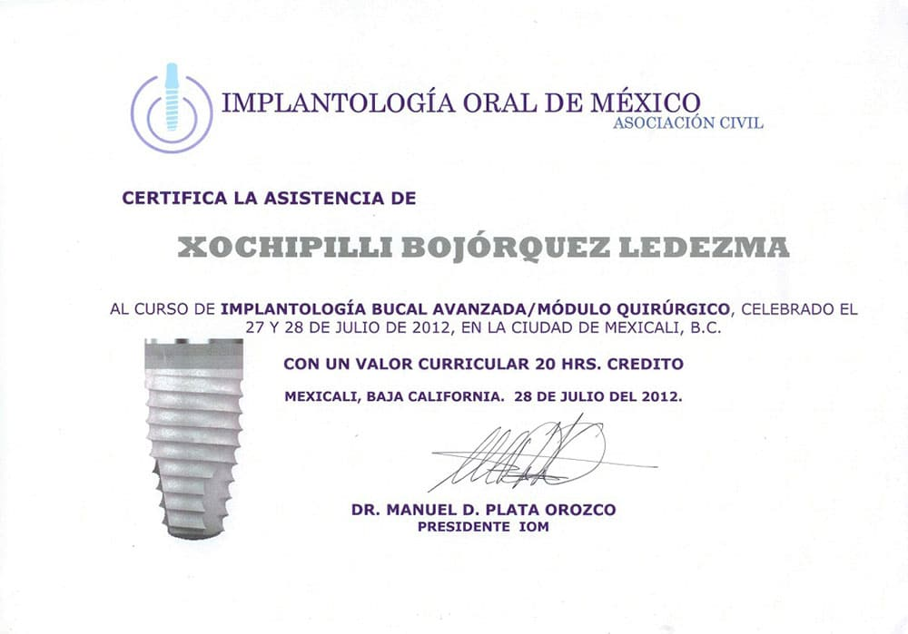Advanced Implantology