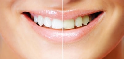 Teeth Withening - Before and After