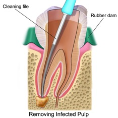 Root Canal Explanation