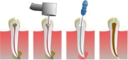 Root Canal procedure: Myth Versus Reality