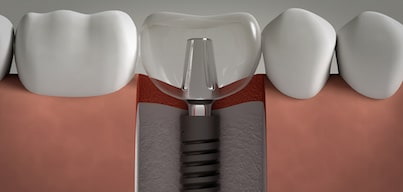The dental implants like more demanded technology