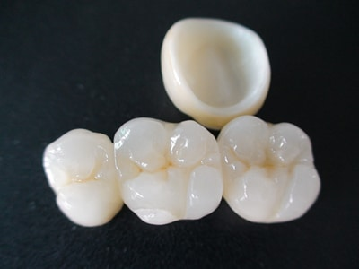 Inlays, Crowns and Veneers: looking good on a budget