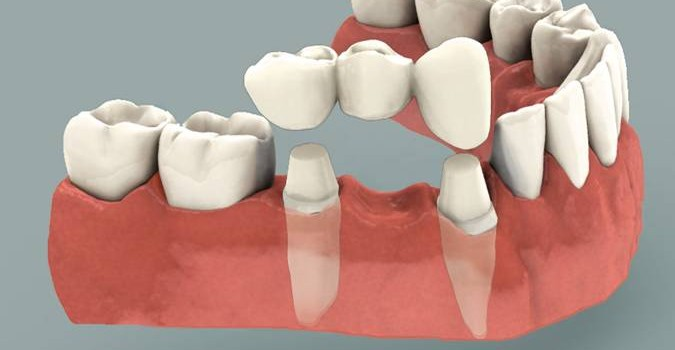 Dental bridge: what is it and when to get one?