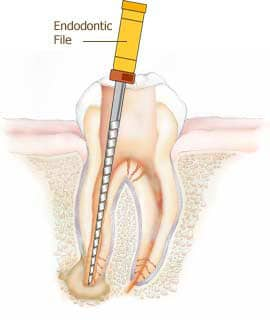 Root canal: How to deal with dental infections