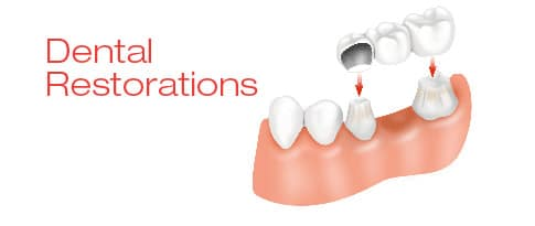 Dental restorations | How to act before the breaking of a crown