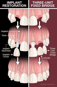 dental implants vs bridge