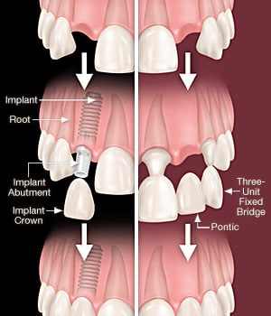 Bridge or Implant?: the best choice for a tooth replacement