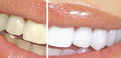Clear Choice: Laser Whitening