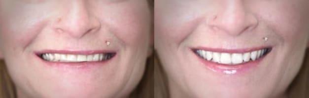 brandi | Los Algodones Dentists
