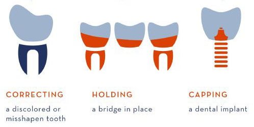 Dental Crowns Uses