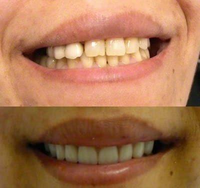 sadi | Los Algodones Dentists