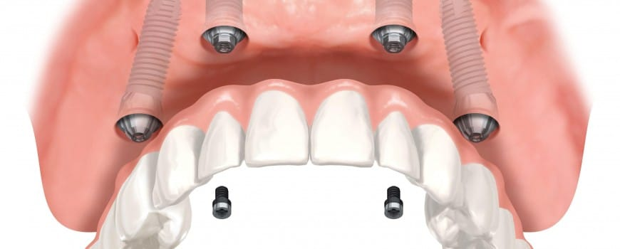 Dental implants: why the growing interest?