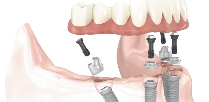 How to endure the healing process of dental implants