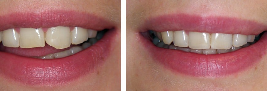 What is cosmetic dentistry and how can it improve your life?