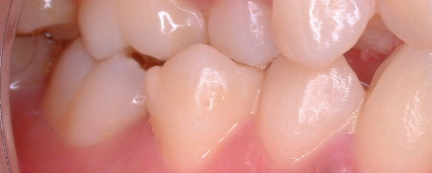 Loose teeth, what causes it and how can we prevent it?
