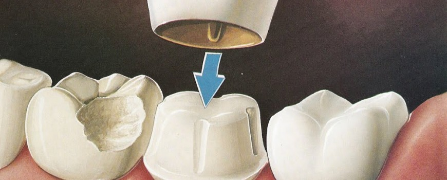 Dental crowns: A quick fix that goes a long way