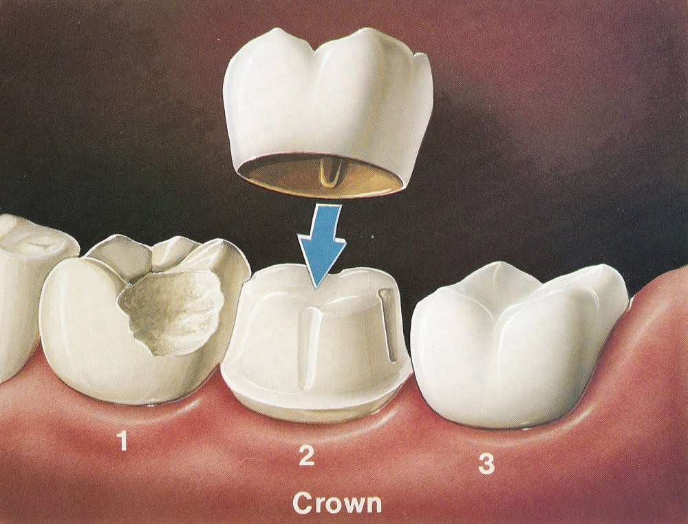 Dental Crowns A Quick Fix That Goes A Long Way Dental