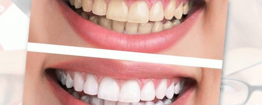 Teeth whitening: bringing back whiteness to a smile.