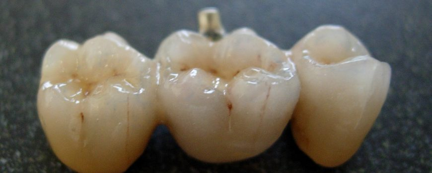 Dental bridges or implants? A side by side comparison