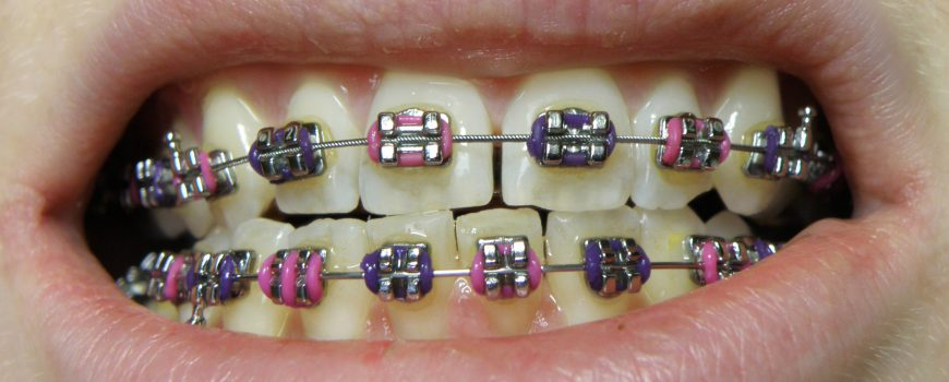 Bracers: A short FAQ about orthodontic procedures