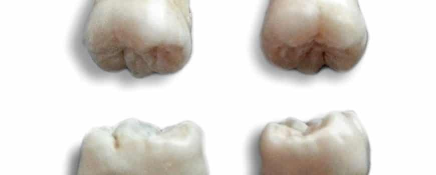 There is a new reason to extract your wisdom teeth: stem cells