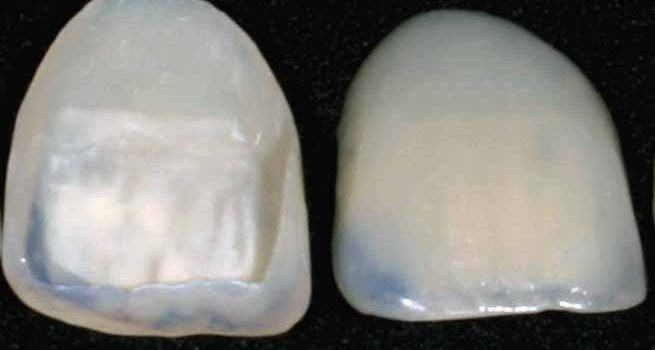 Porcelain veneers: The history behind them and the benefits to our patients