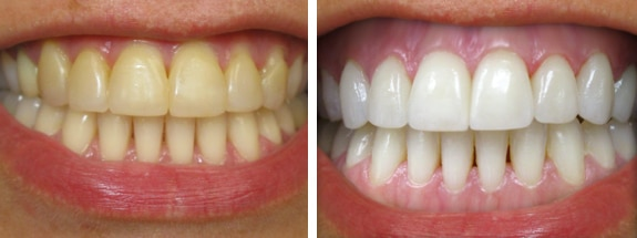 What are the best methods to remove a stain from your smile?