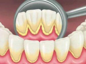 How To Remove Dental Plaque | Los Algodones Dentists