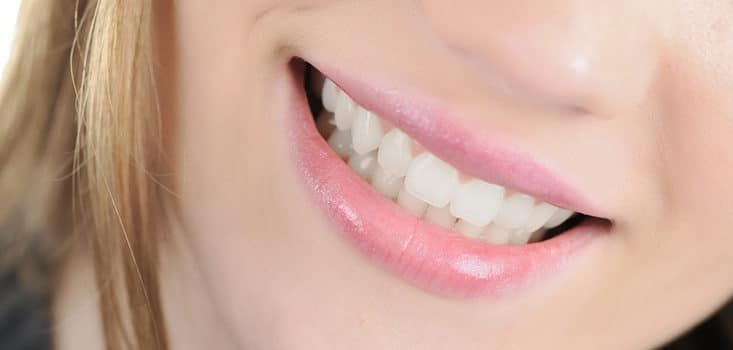 Everything you need to know about veneers
