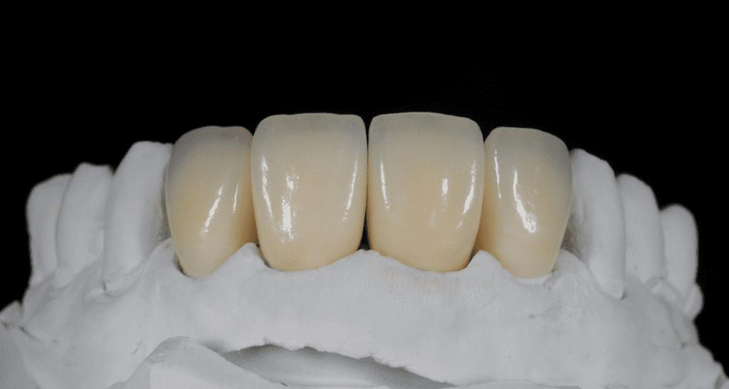 How Long Do Dental Crowns Last? | Best Dental in Houston, TX