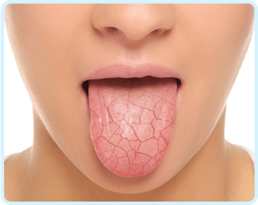 Bet you did not know the connection between saliva and dental caries