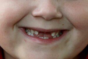 Teeth | Los Algodones Dentists