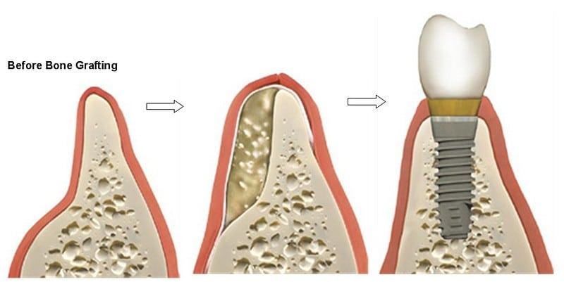 bone grafting   Los Algodones Dentists