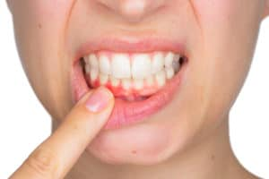 gingi   Los Algodones Dentists