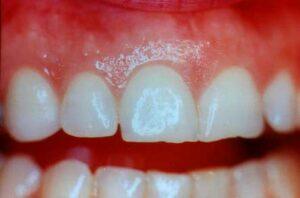 Maintain Healthy Gums and Teeth   Los Algodones Dentists