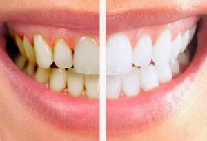 Remove Teeth Plaque | Los Algodones Dentists