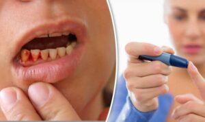 bleeding gums diabetes early sign periodontitis 770645   Los Algodones Dentists