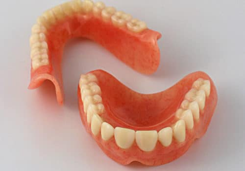 Are classic dentures the best option for teeth loss?