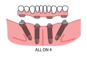 all on 4 2 | Los Algodones Dentists