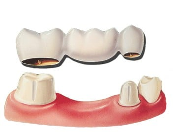 Choosing between a dental implant and dental bridges