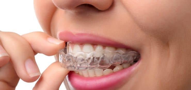 How to finally stop grinding your teeth (or Bruxism)