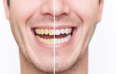 Top reasons why you do not have white teeth