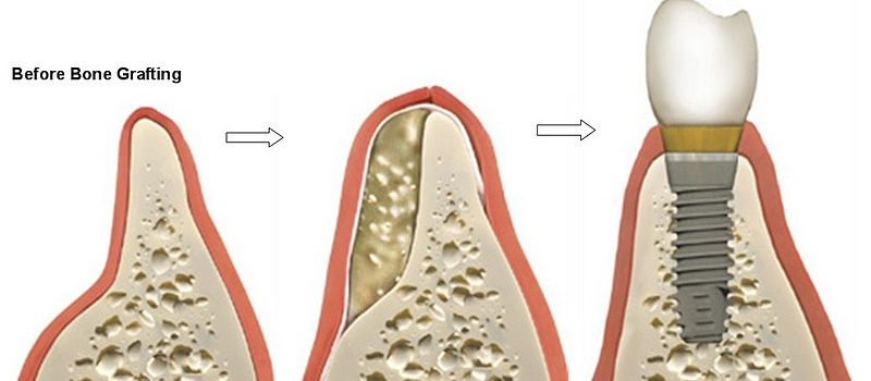 How bonegraft is used in dentistry to improve the patient's smile