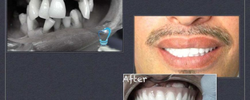 Allon4 the ultimate solution for missing teeth