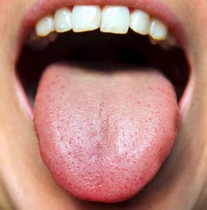 Why you need a tongue scraper in your oral care