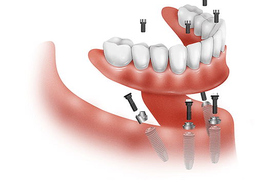 Why  choose dental implants for teeth loss