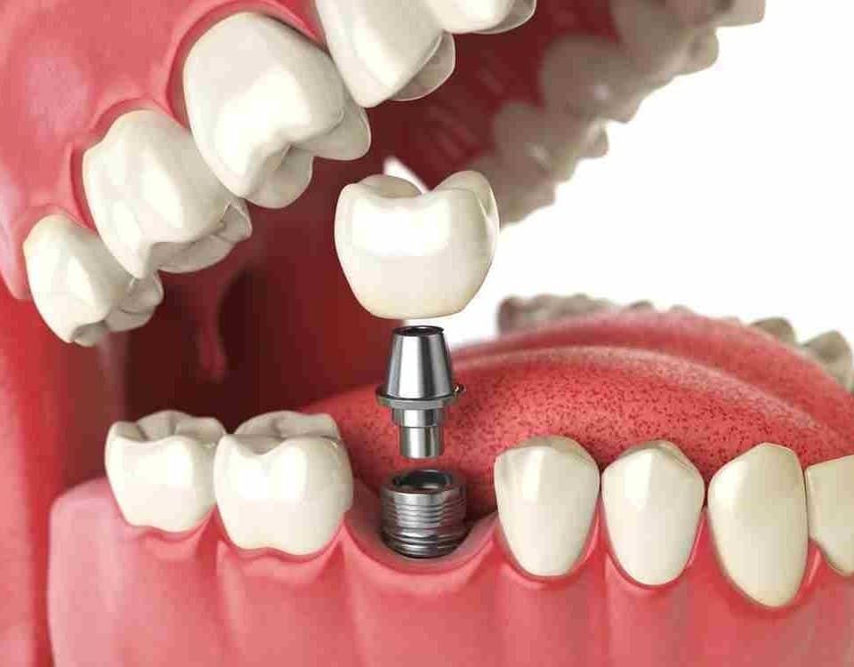 Dental Bone Grafting22