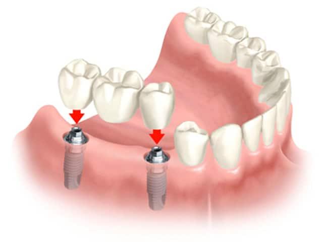 dental bridge implant page1   Los Algodones Dentists