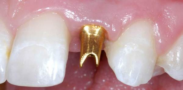 Why gold dental implants are not recommended