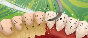 The Foleck Center Cartoon illustration of tartar oj56cuv1qqrjm4a1vcjar8f0yuzttjwiri4xzc4ayw | Los Algodones Dentists